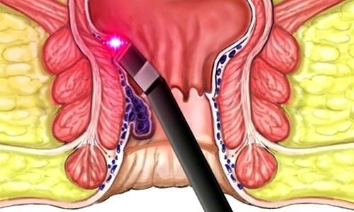 Инфракрасная фотокоагуляция геморроидальных узлов