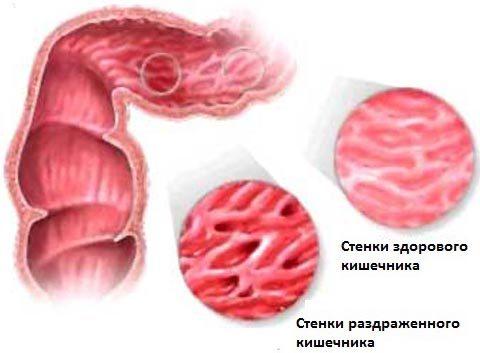 Особенности лечения синдрома раздраженного кишечника: симптомы, к какому врачу обратиться, описание препаратов, диета, народные средства