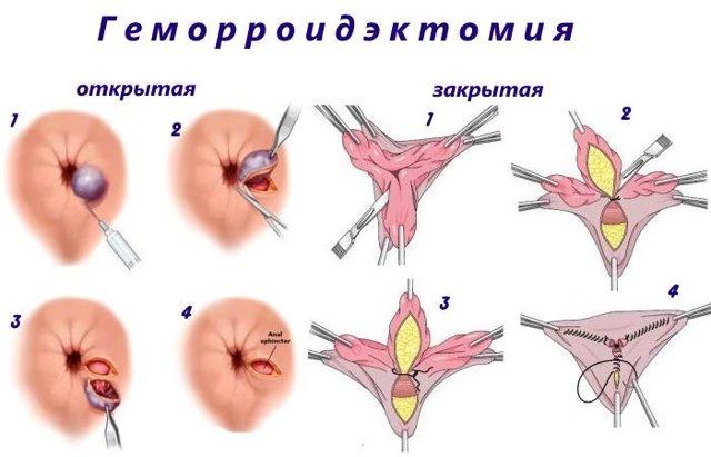 Выпадение геморроидальных узлов: что делать, если «выпал геморрой»?