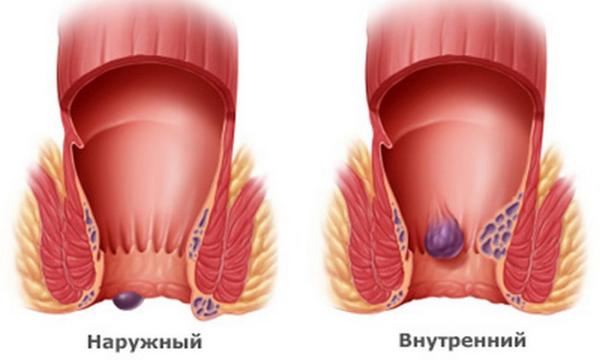 Лечение геморроя у кормящей матери