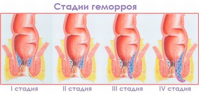 Геморрой на 2 стадии (вторая степень): симптомы, фото, консервативные и малоинвазивные методики лечения