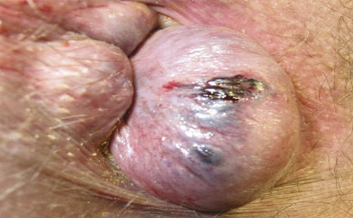 Симптомы и особенности лечения комбинированного геморроя