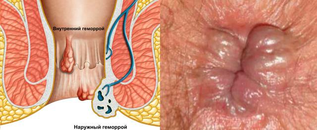 Причины выделения кала со слизью и методы лечения недуга