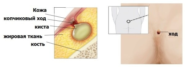 Особенности лечения эпителиального копчикового хода: операция, прогноз