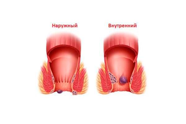 Причины появления запора при беременности
