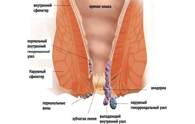 Имбирь для лечения геморроя: полезные свойства, народные рецепты, противопоказания
