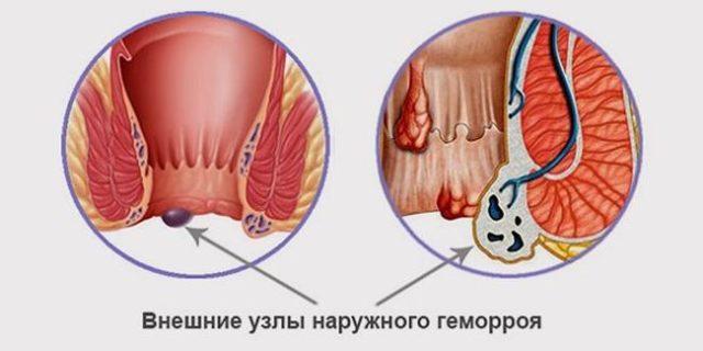 Обзор эффективных обезболивающих средств при геморрое