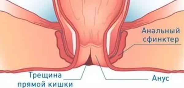 Симптомы заболеваний прямой кишки и особенности их лечения