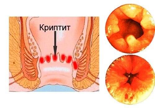 Воспаление морганиевой крипты: симптомы, особенности лечения криптита