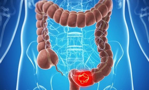 Особенности лечения дискинезии кишечника