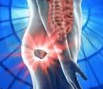Симптомы и особенности лечения прокталгии у мужчин и женщин