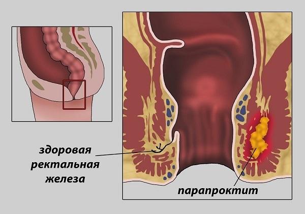О лечении парапроктита в домашних условиях: когда применяют народные средства