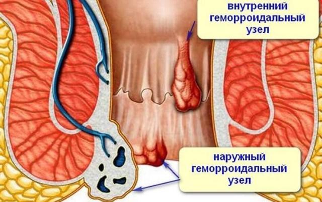 Геморрой на 3 стадии (третья степень): симптомы, фото, малоинвазивное методики лечения и операция