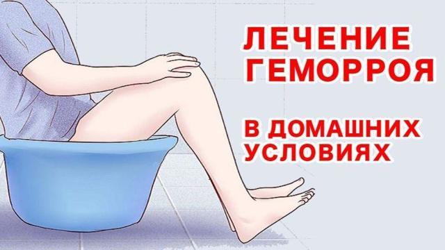 Как убрать узлы и шишки геморроя в домашних условиях