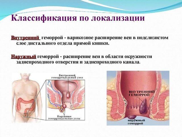 Как осуществить лечение геморроя у беременных в домашних условиях?
