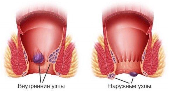 Причины гнойных выделений из ануса