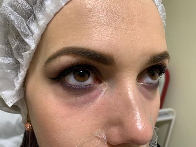 Носослезная борозда: коррекция филлерами гиалуроновой кислоты, возможные последствия
