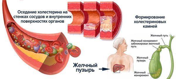Холестероз желчного пузыря: что это такое, очаговая и полипозная формы, признаки, клинические рекомендации по лечению, диета, народные средства