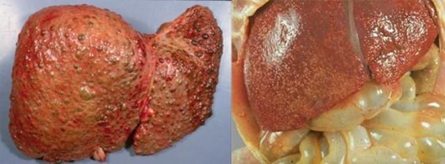 Вирусный гепатит С - лечение, пути передачи, РНК вируса