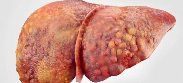 Гепатит и желтуха: это одно и то же или нет, какого типа вирус - А или Б, как передается это заболевание