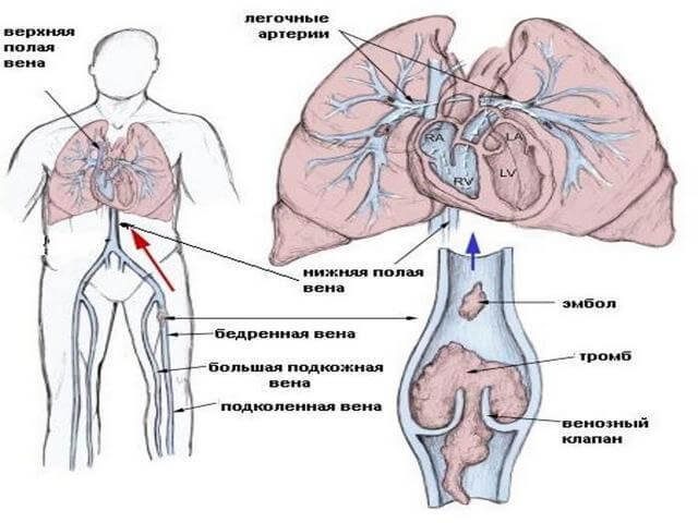 Колет в правом боку: под ребрами спереди и сзади, внизу живота у женщин и мужчин, при ходьбе, беге, при вдохе, что делать при симптоме у взрослого и ребенка