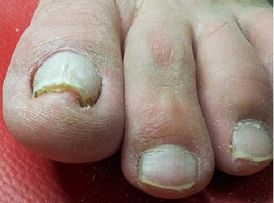 Лечение грибка ногтей: эффективные средства и способы избавиться от онихомикоза