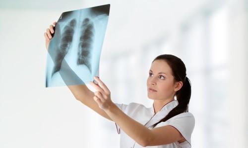 Распад легких при туберкулезе: опасные последствия