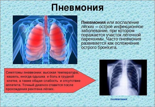 Какие назначают уколы при воспалении легких