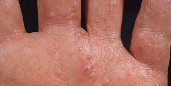 Дисгидротическая экзема кистей рук: лечение мазями и народными средствами, симптомы и причины