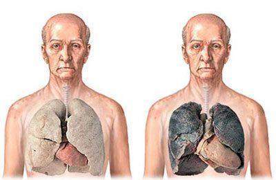 Как очистить легкие после курения: рекомендации