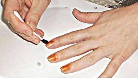 Йод от грибка ногтей на ногах: отзывы и рецепты для лечения в домашних условиях