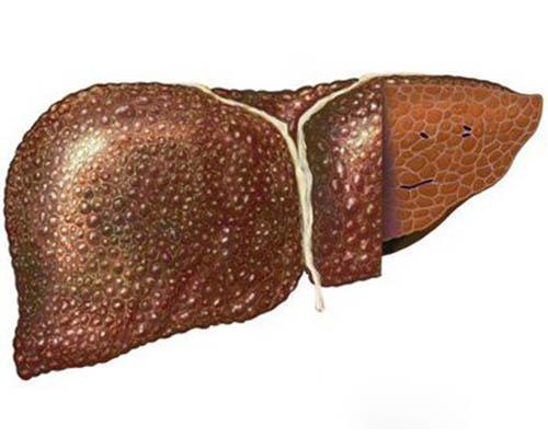 Криптогенный цирроз печени