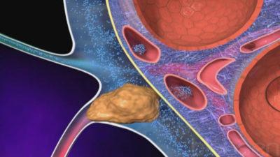 Чем лечить правосторонний адгезивный плеврит на фоне сахарного диабета и гипертонии