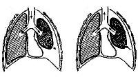 Закрытый пневмоторакс: особенности диагностики