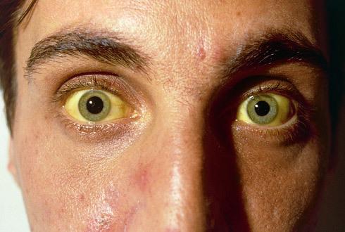 Симптомы гепатита А: первые признаки у женщин, мужчин, детей