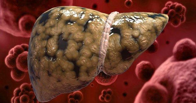 Диффузные изменения печени по типу жирового гепатоза - что это, симптомы и лечение