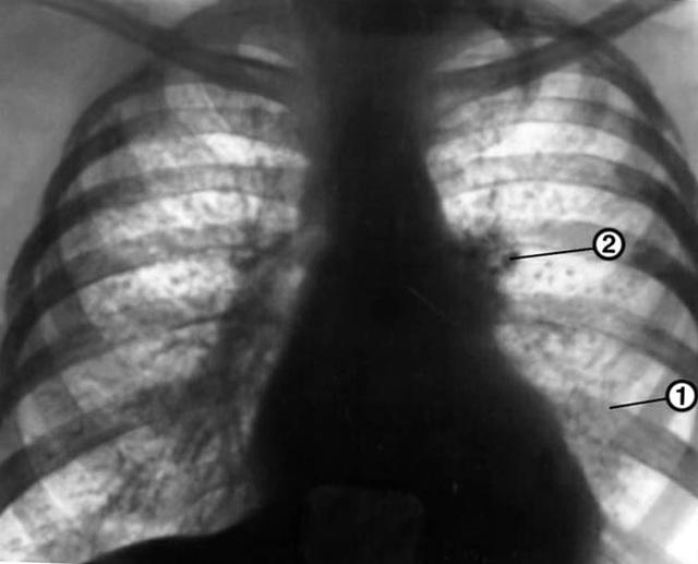 Признаки Туберкулеза: Симптомы Поражения Легких (с Фото)