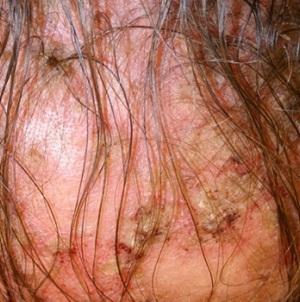 Мазь от себорейного дерматита на голове и теле: лечение наружными средствами