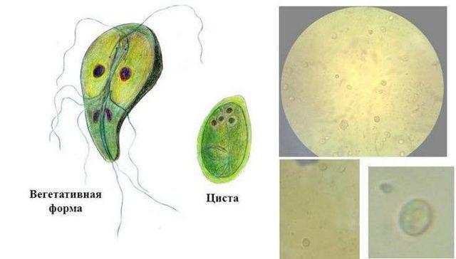Лямблии в печени: симптомы у взрослых и детей, лечение, способы, как избавиться от паразитов, эффективность народных средств