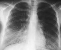 Грибковая Пневмония: Причины, Симптомы, Лечение, Видео