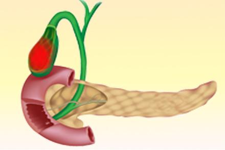 Каротиновая желтуха, симптомы, лечение