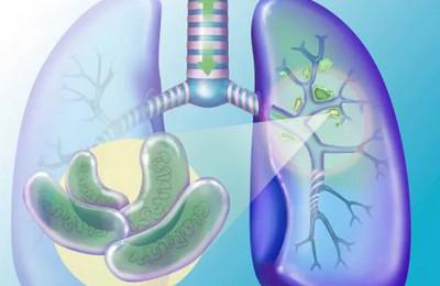 Симптомы Открытой Формы Туберкулеза: Что Нужно Знать