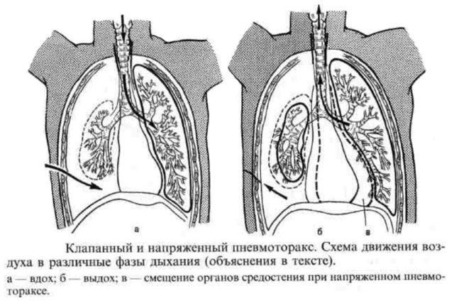 Напряженный пневмоторакс: особенности патологии
