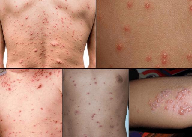 Herpes zoster — опоясывающий лишай: что это такое, симптомы и лечение герпеса 3 типа