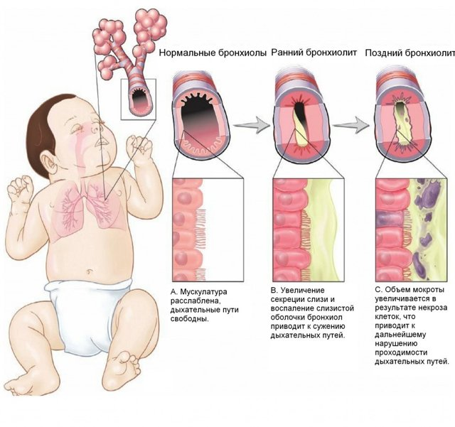 Обструктивный бронхит у грудничка: как лечить
