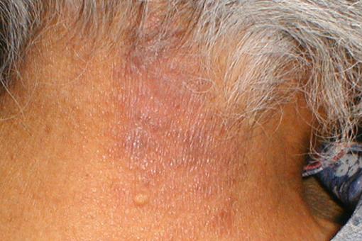 Диффузный нейродермит: симптомы, фото, лечение аптечными и народными средствами