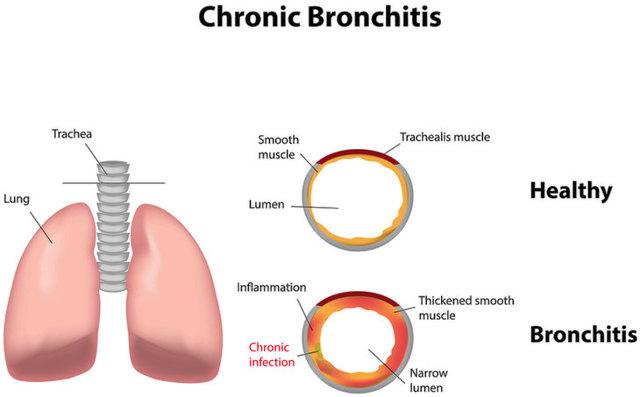 Как лечить хронический бронхит в домашних условиях: проверенные средства