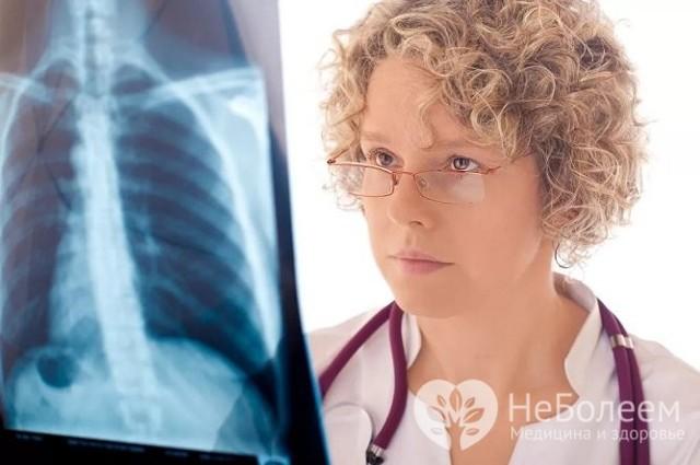 Стрептококковая Пневмония: Симптомы, Диагностика, Лечение