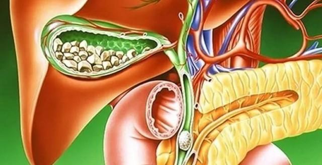 Холецистит у мужчин: признаки и симптомы, лечение взрослых пациентов, что делать при хроническом заболевании