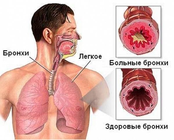 Основные Симптомы и Лечение Хронического Бронхита у Взрослых